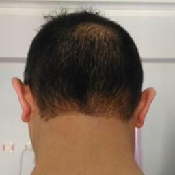 bir bilen profil fotoğrafı